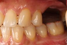 2 値段 入れ歯 奥歯 部分 本 奥歯の入れ歯の値段は?どんな種類がある?