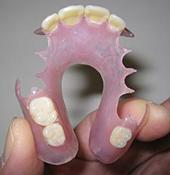 本 2 入れ歯 値段 奥歯 部分